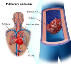 Sign and symptoms of pulmonary embolism