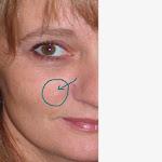 Léloignement les taches de pigment sur la personne tver