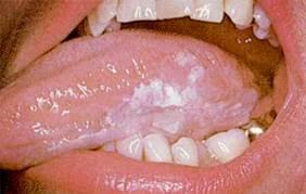 Cara Menyembuhkan Kanker Mulut