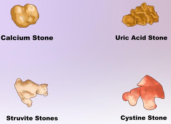 Causes and Symptoms of Stone in Bladder
