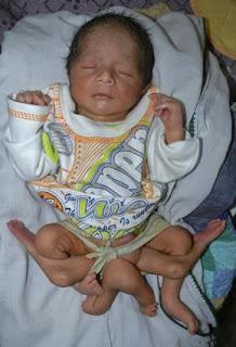 ولادة طفل بـ 6 أرجل في باكستان