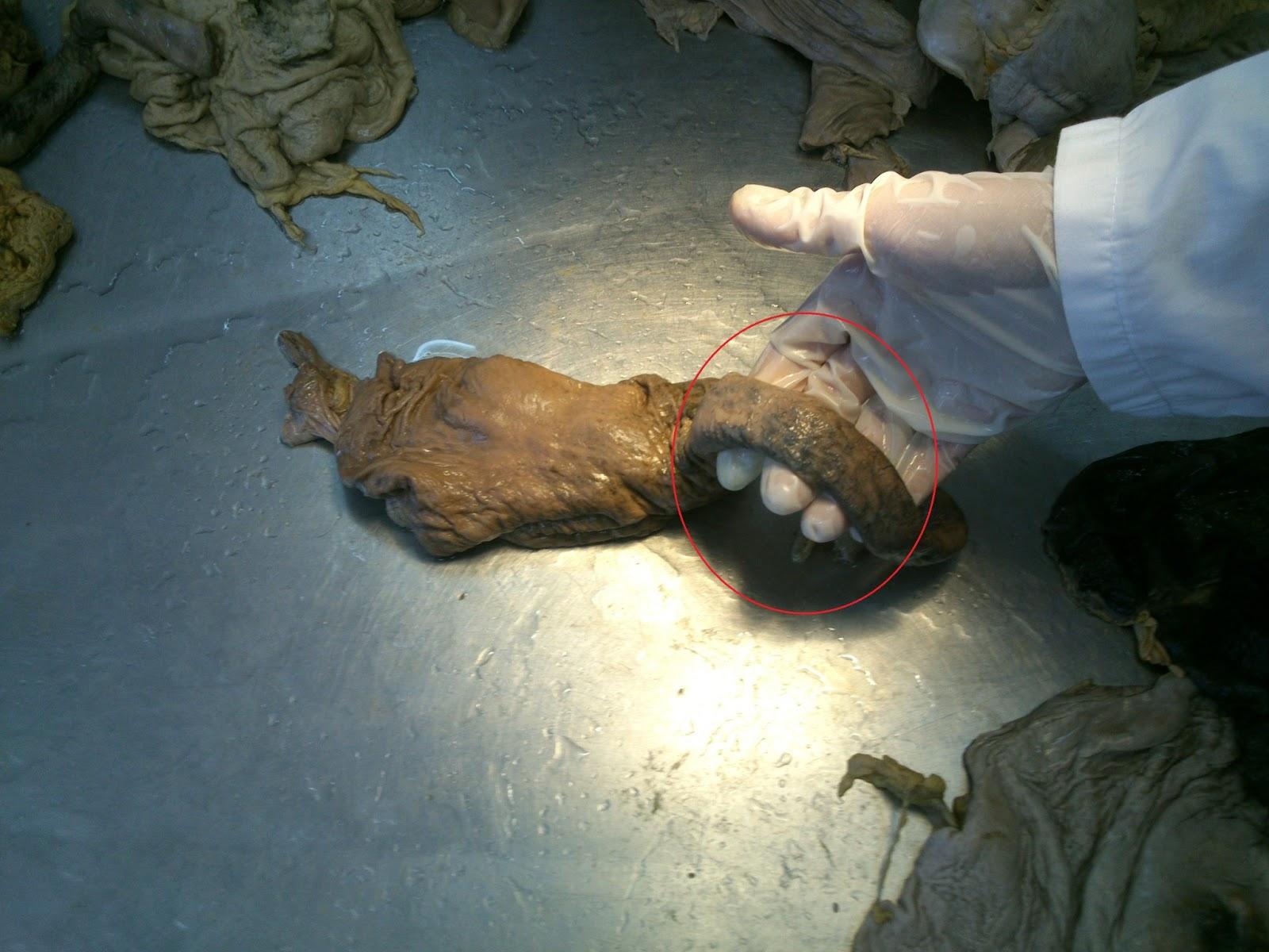 Histopatología: PATOLOGÍA DEL ESÓFAGO Y ESTOMAGO