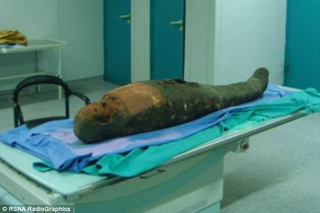 2400-Year Old Mummy with Brain Removal