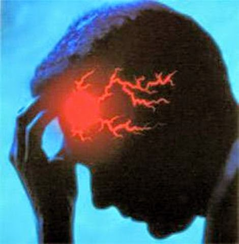 أربع مسببات للسكتة الدماغية عند الرجال - فور يو