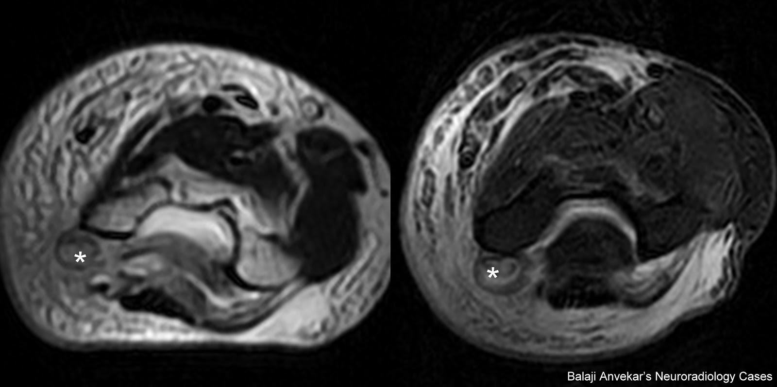 Dr Balaji Anvekar\'s Neuroradiology Cases: 01/11/12 - 01/12/12