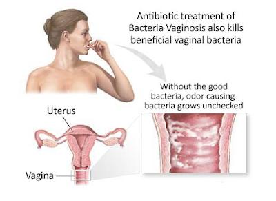 Prevent_Bacteria_Vaginosis