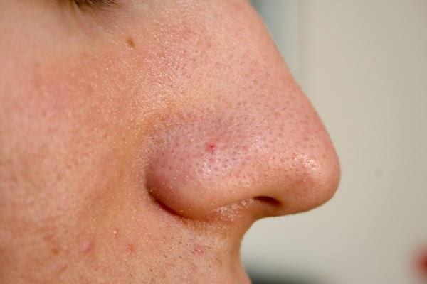 Cara Menghilangkan Komedo di Wajah