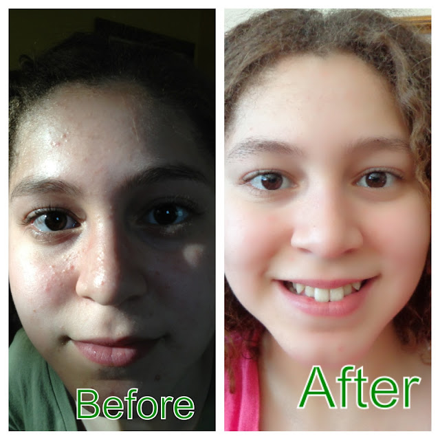 miliany bonet skin transformation - before and after photos