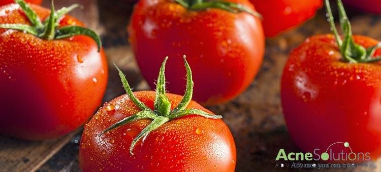Thực phẩm tốt nhất cho trị mụn là cà chua