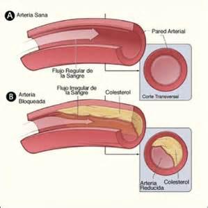"""<img src=""""colesterol.jpg"""" alt=""""arterias con colesterol malo y colesterol bueno"""">"""