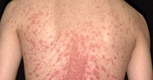 Similiar Pityriasis Rosea Christmas Tree Pattern Keywords
