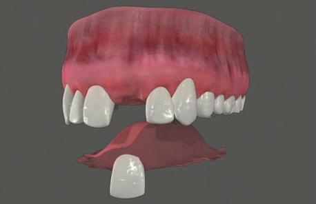 Crystal lake dentals hot topics temproary partial denture temporary partial denture solutioingenieria Images