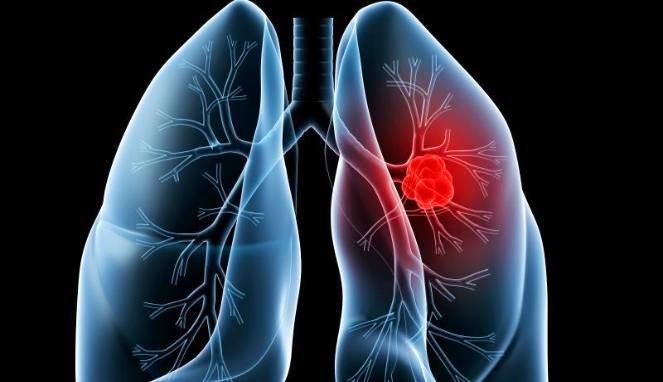 bersihkan paru-paru yang kotor, jadibisa
