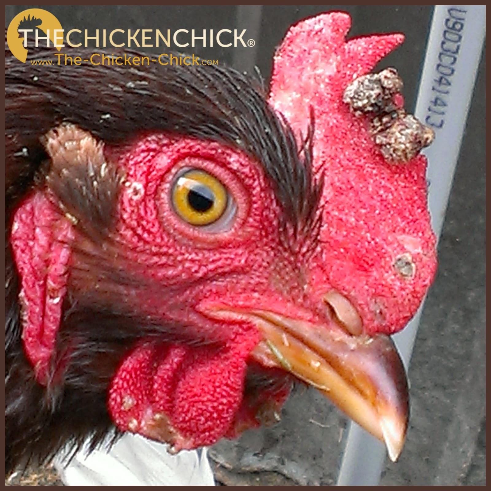 how to tell if u got chicken pox
