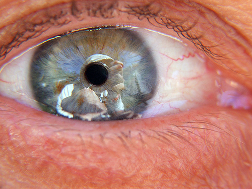 Cialis Eye Floaters
