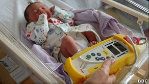 sencilla prueba para detectar cardiopatías en Recien Nacidos