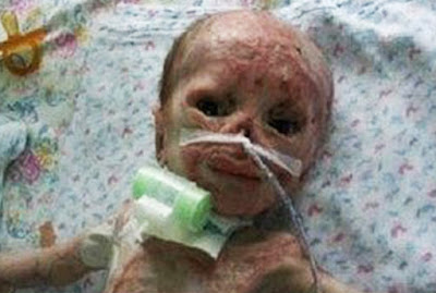 Baby accidentally burnt in Incubator abandoned by parents