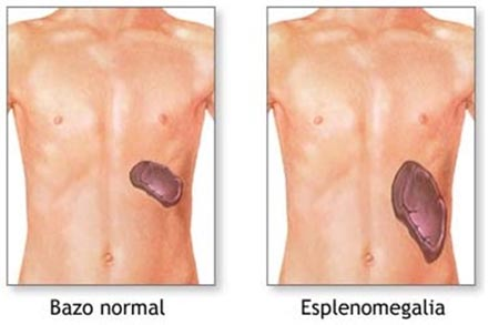La menopausia el aumento del pecho