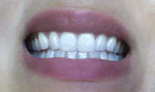 AFTER - Luster NOW! Instant Whitening Toothpaste