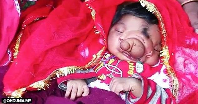 Bayi perempuan lahir dengan hidung belalai dipuja seperti Tuhan