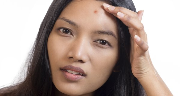 Expert Recommended Diet plan for acne Free Skin