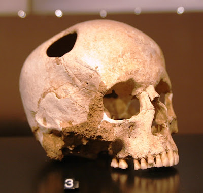 Ancient Trepanning (Brain Surgery) And Other Advanced Medical Knowledge