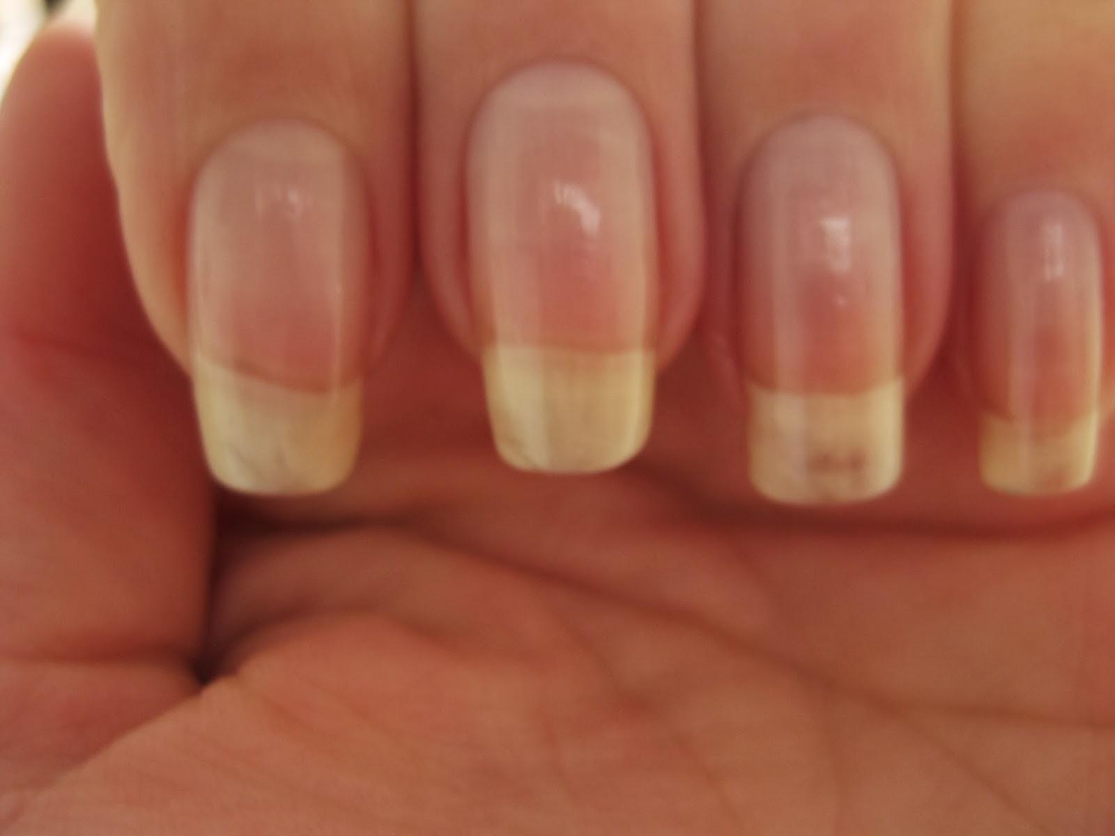 Health Body Nails & Fun: Nails ~ Wijzigen nagelvorm (nail ... Almond Nagels
