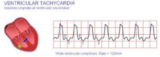 ventricular tachycardia causes