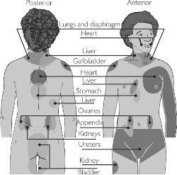 Kidney Stone Pain Chart