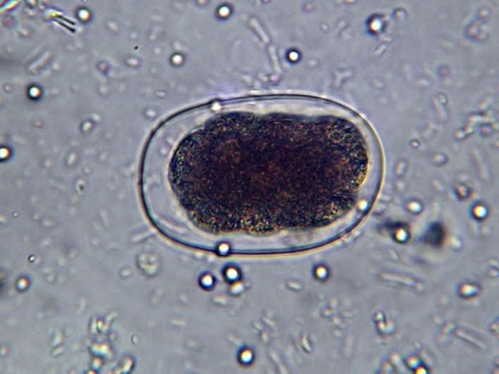 Hookworm in human stool - photo#5