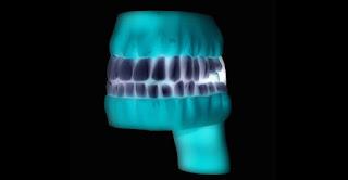 Dental Implants Maryland - Dental Health Associates