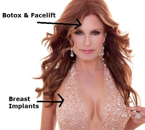 tracey bregman before and after plastic surgery