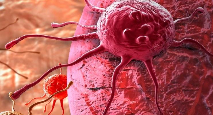 Image Mengobati Kanker Serviks Secara Alami