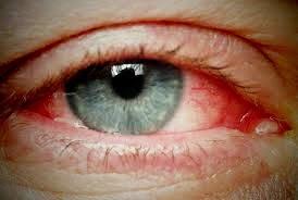 Cara Memutihkan Mata Yang Merah Secara Alami Magaziana
