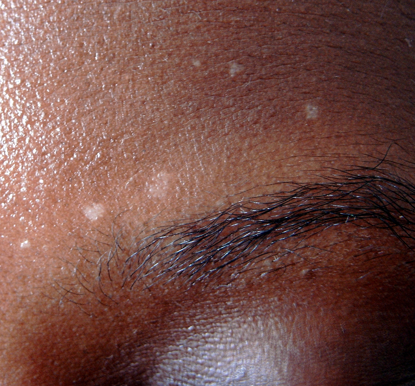 topical steroids used for eczema