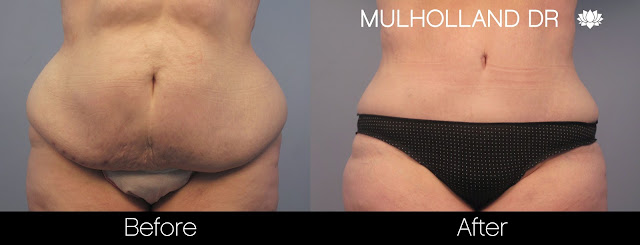 This patient had a tummy tuck to flatten her abdomen