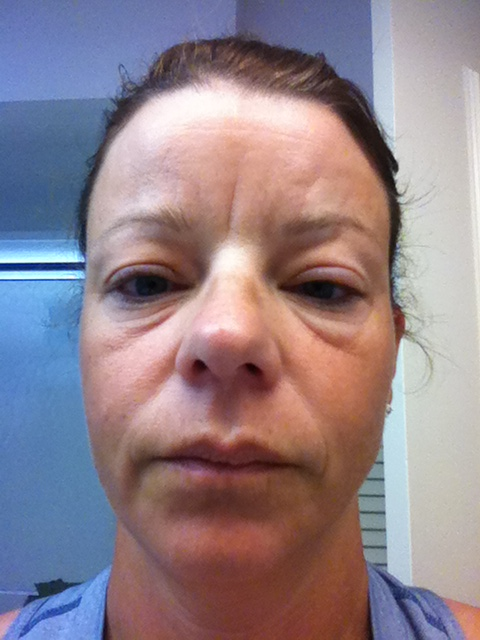 funny swollen faces   Search Results   Dunia Pictures