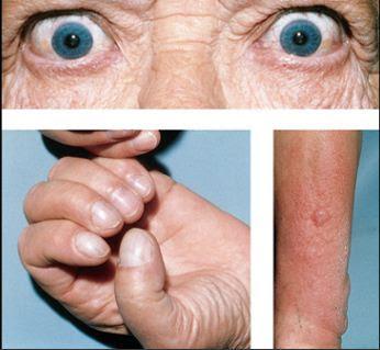 graves disease-symptoms