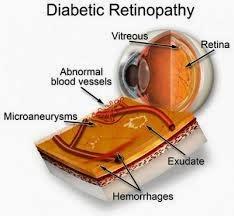 Ini Dia Fakta Diabetes yang tidak Banyak Diketahui