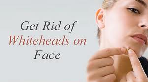 How to treat whiteheads?