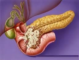 Pancreatic+Cancer - What is pancreatic cancer , Symptoms , Causes