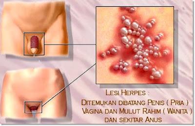 Cara Mengobati Herpes Kelamin Dalam 5 Hari