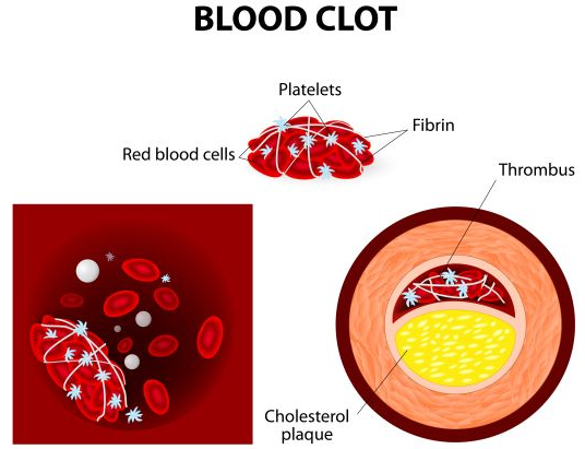 Home Aayurvedic Remedies to Cure Blood Disorder