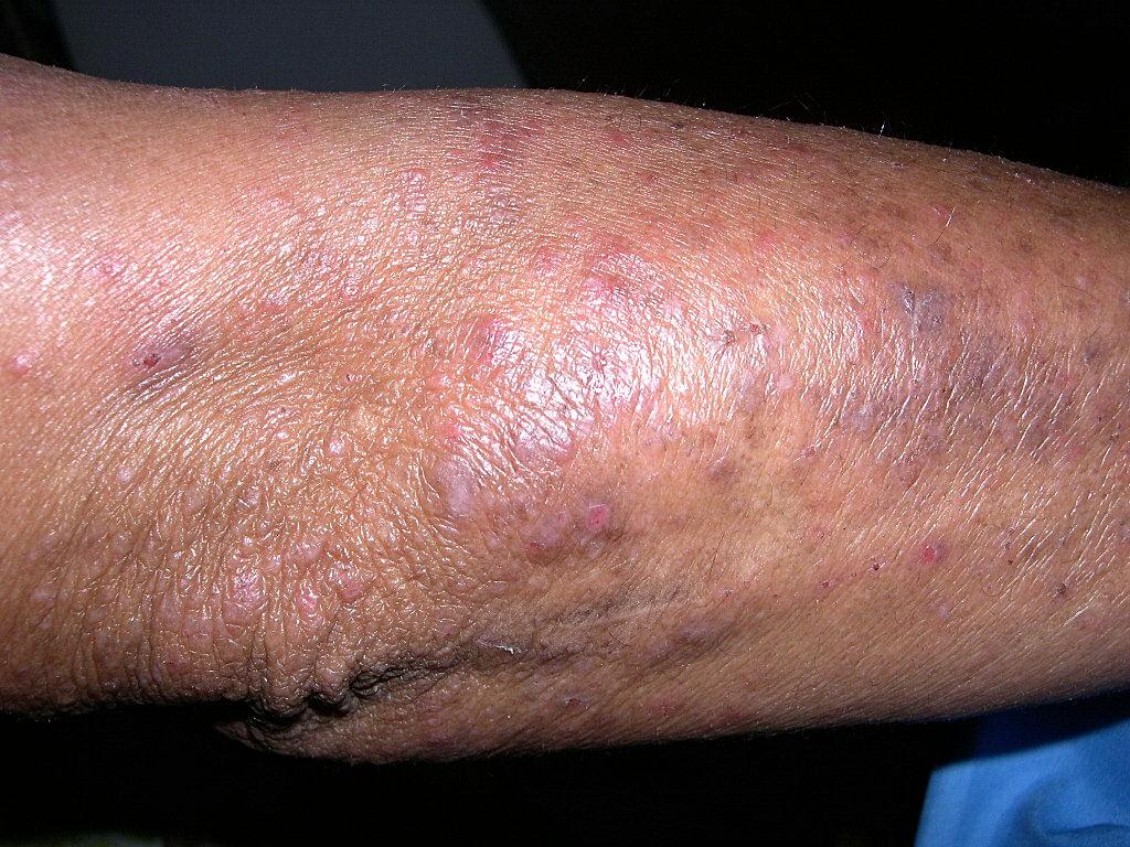hudceliaki dermatitis herpetiformis