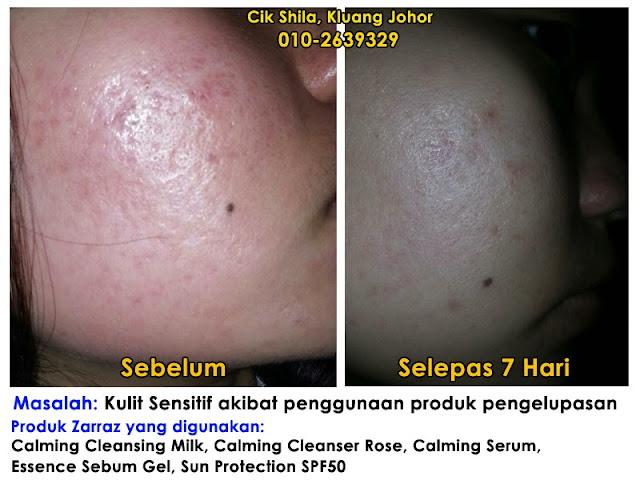 rawatan kulit sensitif