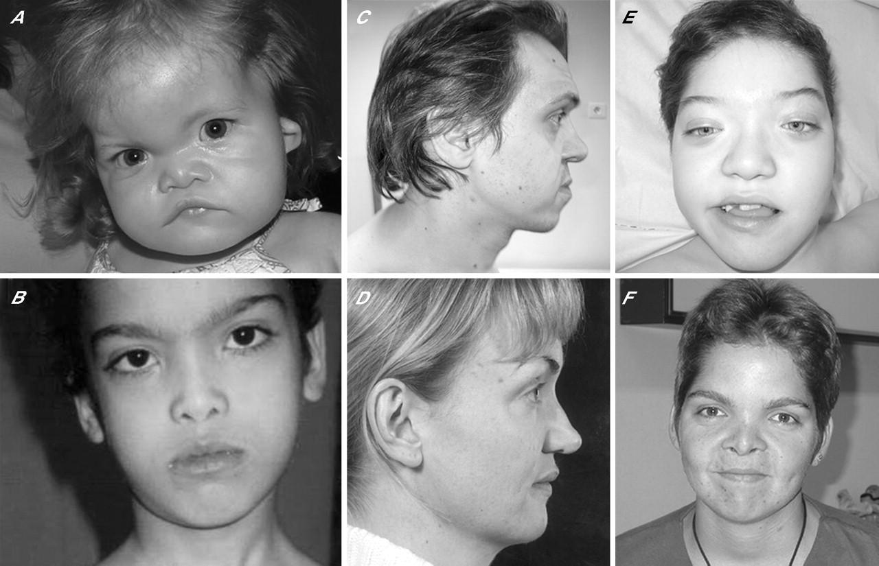 نتيجة بحث الصور عن مرض متلازمة دي جورج عند الرضع والاطفال أسبابه ،علاجه