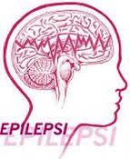 Obat Sakit Epilepsi Tradisional