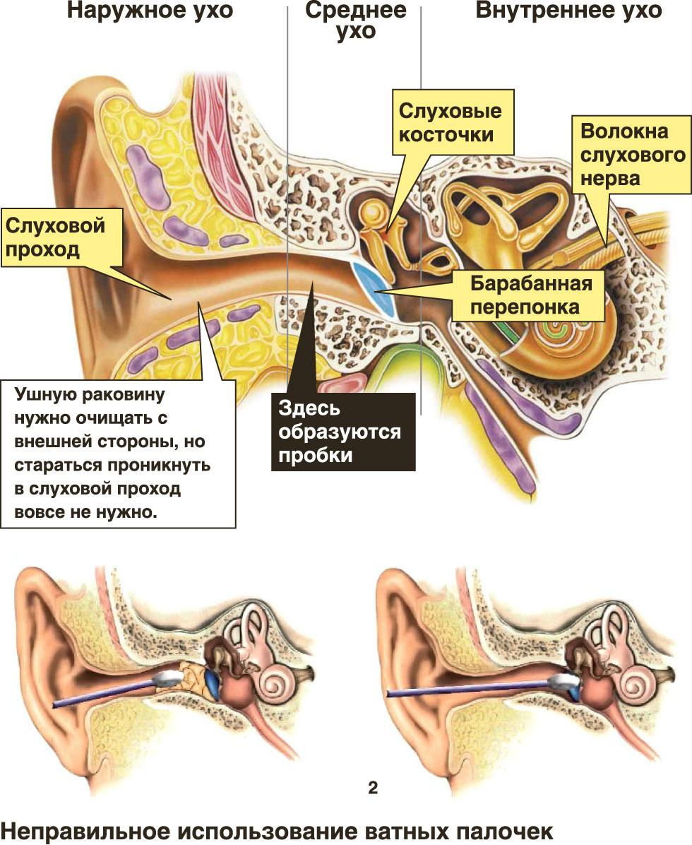 Пробки в ушах - лечение в домашних условиях народными
