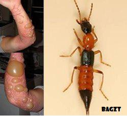Nama Am: Kumbang Rove Nama Saintifik : Staphylinidae (Insecta: Coleoptera: Staphylinidae) Nama Setempat: Semut Semai, Semut Kayap, Charlie dll Spesies: Ädâ sekitar 47 000 Spesies Habitat: Sawah padi dan padang sekolah.