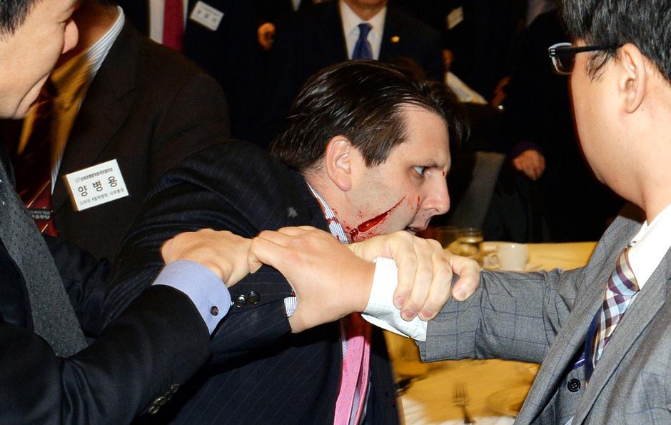 El embajador estadounidense Mark Lippert tras ser atacado con un cuchillo en Seúl